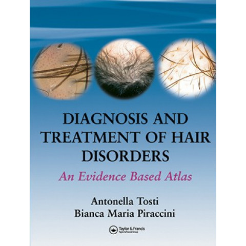 Diagnosis and Treatment of Hair Disorders: An Evidence-Based Atlas