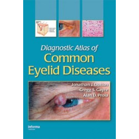 Diagnostic Atlas of Common Eyelid Diseases
