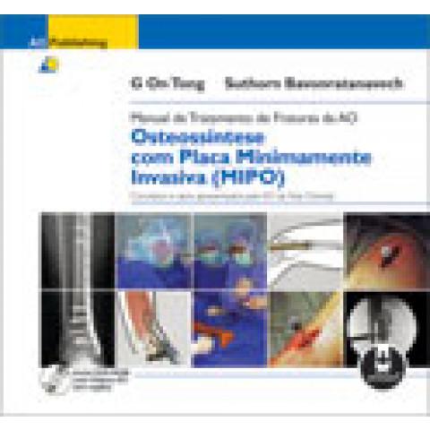 Manual de Tratamento de Fraturas da AO: Osteossíntese com Placa Minimamente Invasiva (MIPO) Edição 2009