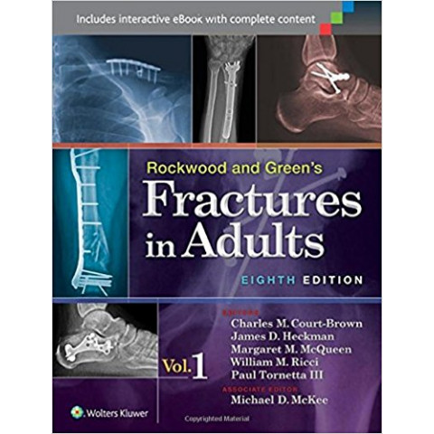 """Rockwood and Green's Fractures in Adults (2 Volume Set), (Fractures in Adults """"Rockwood and Green's""""), In two volumes, Eighth Edition"""